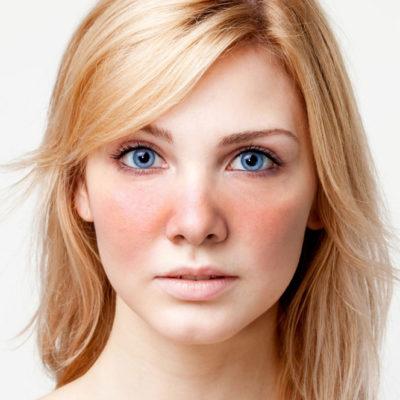 Rosacea, érzékeny bőr